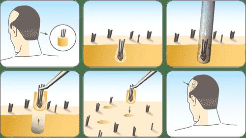 Implant de par FUE 10