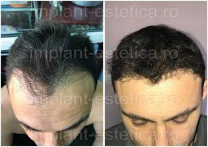 before and after implant de par cluj 315