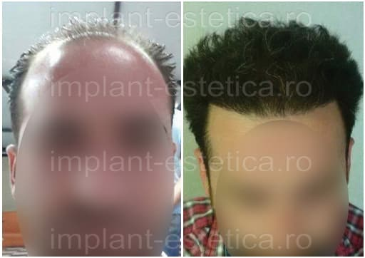 hair transplant before and after Cluj