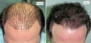 implant-de-par-cluj-300x143