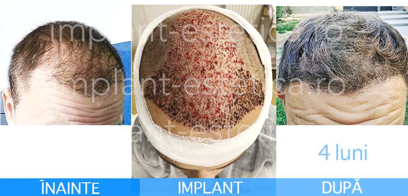 implant de par dupa 4 luni