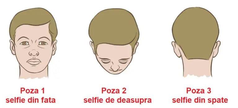 cum se vor face pozele pentru consultatia de implant de par